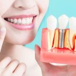 recuperare dupa implant dentar